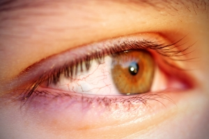 Gdy oczy mówią, że potrzebujesz okularów [Fot. Anna81 - Fotolia.com]