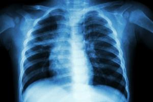 Gruźlica nie jest chorobą z przeszłości [Fot. stockdevil - Fotolia.com]