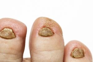 Grzybica paznokci - jakie są objawy, jak uniknąć infekcji [Fot. nataba - Fotolia.com]