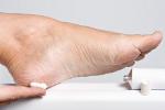 Grzybica stóp -  problem uciążliwy i wstydliwy [© Anyka - Fotolia.com]