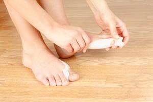 Haluksy: przyczyny, sposoby leczenia [© iskandarov - Fotolia.com]