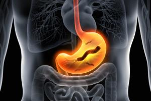 Helicobacter pylori: objawy zakażenia, diagnostyka, leczenie [Fot. peterschreiber.media - Fotolia.com]