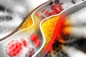 Hipercholesterolemia Rodzinna - ukryte zagro�enie dla ca�ych rodzin [© hywards - Fotolia.com]