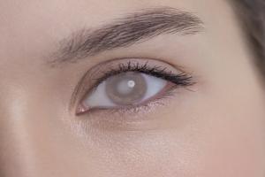 Historia leczenia zaćmy [Fot. mikolajn - Fotolia.com]