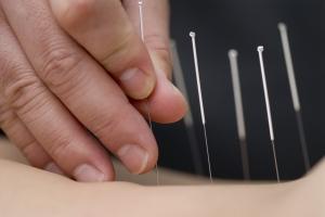 Igłą prosto w bÃłl: akupunktura w leczeniu bÃłlu [Fot. Max Tactic - Fotolia.com]