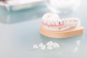 Implanty a protezy: czym się różnią? [© alimyakubov - Fotolia.com]