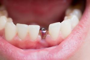 Implanty stomatologiczne - w Polsce tanio [©  AnnaMoskvina - Fotolia.com]