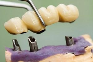 Implanty stomatologiczne: prawdy i mity [© Sandor Kacso - Fotolia.com]