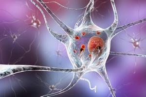 Innowacyjny lek - nadzieja dla pacjentów cierpiących na chorobę Parkinsona [fot. Kateryna_Kon - Fotolia.com]