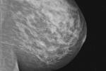 Interwałowy rak piersi zwiększa ryzyko innych nowotworów [© Kelpfish - Fotolia.com]