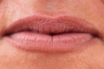 Jak dbać o usta zimą [© Eléonore H - Fotolia.com]