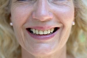 Jak dbać o zęby w menopauzie? [Fot. michaelheim - Fotolia.com]