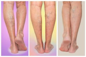 Jak poprawić krążenie w nogach? Pomogą proste ćwiczenia [Fot. Solarisys - Fotolia.com]
