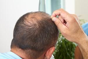 Jak przeciwdzia�a� wypadaniu w�os�w? [© Petrik - Fotolia.com]
