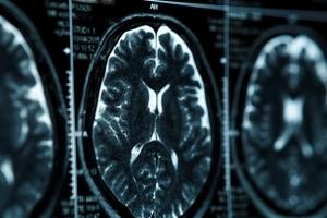 Jak przygotować się do rezonansu magnetycznego? [Fot. DedMityay - Fotolia.com]