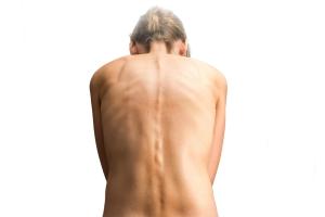 Jak rozpoznać skoliozę? [Fot. Ralf Geithe - Fotolia.com]
