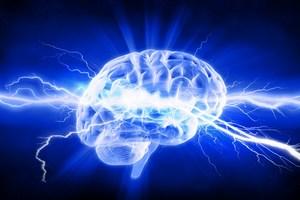 Jak rozpoznać udar mózgu? [© adimas - Fotolia.com]