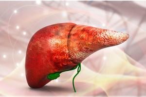 Jak rozpoznać wirusowe zapalenie wątroby? [© bluebay2014 - Fotolia.com]