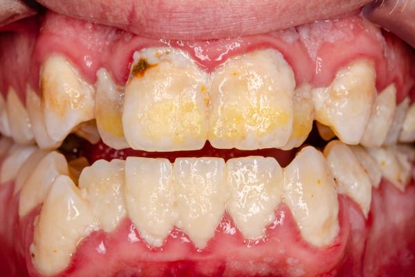 Jak stan zębów i jamy ustnej wpływa na zdrowie całego organizmu [Fot. Dirk - Fotolia.com]