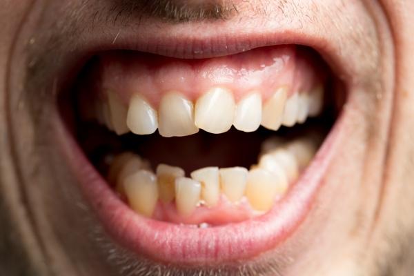 Jak utrata zębów wpływa na zgryz? [Fot. Pavel Lysenko - Fotolia.com]