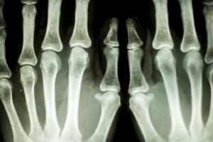 Jak zbudować mocne kości do późnej starości? [Fot. MartinGunchev - Fotolia.com]