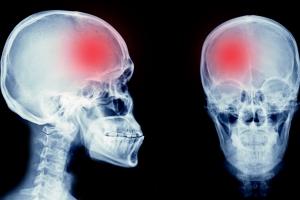 Jak zmniejszyć ryzyko wystąpienia udaru?  [Fot. utah778 - Fotolia.com]