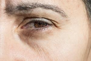 Jak zmniejszyć widoczność zmarszczek [Fot. Degimages - Fotolia.com]