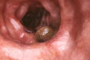 Jakie są objawy raka jelita grubego [Fot. crevis - Fotolia.com]