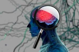 Jakie są symptomy zagrożenia demencją? [Fot. Anatomy Insider - Fotolia.com]