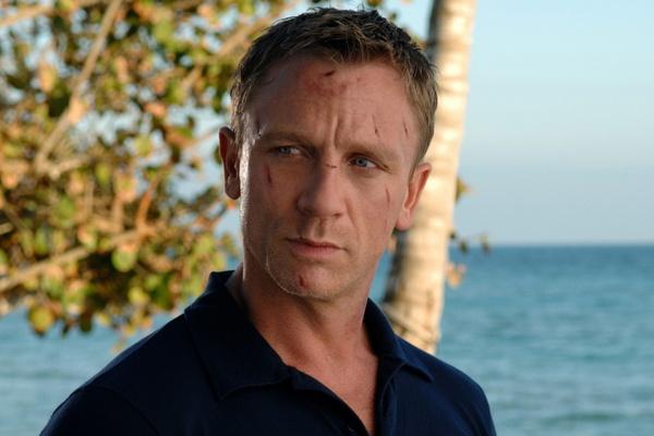James Bond u chirurga [Daniel Craig fot. UIP]