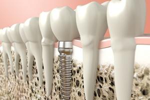Jeden ząb to też duża strata [© beawolf - Fotolia.com]