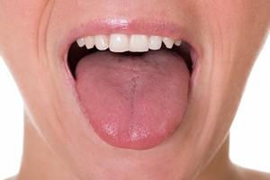 Język: wskaźnik Twojego zdrowia [©  Andrey Popov - Fotolia.com]