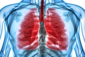 Każdego roku rak płuca zabija 23 tysiące Polaków [Fot. yodiyim - Fotolia.com]
