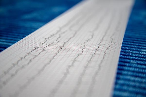 Kobiety częściej umierają na zawał serca [fot. Mirko Sajkov from Pixabay]