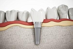 Kompletne uzębienie: implant jak ząb naturalny [© destina - Fotolia.com]