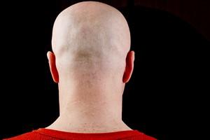 Kraj o największej liczbie łysiejących? Możecie być zaskoczeni [© VIPDesign - Fotolia.com]