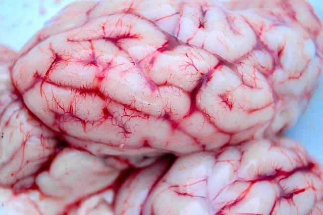 Krwiak a ryzyko demencji [fot. aziz enn from Pixabay]