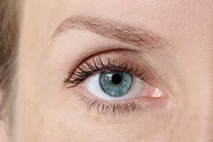 Laserowa korekcja wzroku [© Olga Ekaterincheva - Fotolia.com]