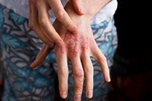 Leczenie łuszczycy w Polsce -  problemy z dostępem do specjalistów i stygmatyzacja [© Olga Ternawska - Fotolia.com]