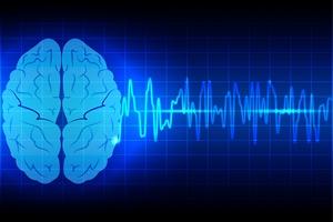Leczenie udarów mózgu coraz skuteczniejsze [© mrspopman - Fotolia.com]