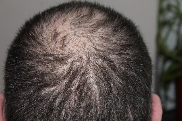 Lek na jaskrę pomoże w odrastaniu włosów [fot. kalhh from Pixabay]