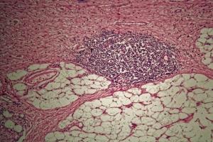 Lek na rozrzedzenie krwi skuteczny na raka? [Fot. ChrWeiss - Fotolia.com]