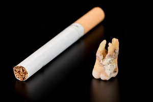 Lubisz sobie zapalić? Twoje zęby czeka ruina. Dzień bez papierosa [© invizbk - Fotolia.com]
