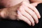 Łuszczyca - prastara choroba skóry [© Farina3000 - Fotolia.com]