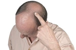 Łysiejący mężczyźni bardziej zagrożeni chorobami serca [© Bombaert Patrick - Fotolia.com]