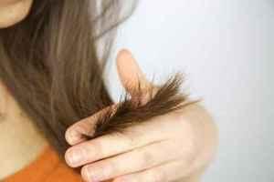 Łysienie u kobiet skutkuje depresją  [© fmarsicano - Fotolia.com]