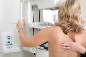 Mammografia - przed badaniem trzeba unikać kofeiny [Fot. Sven Bähren - Fotolia.com]