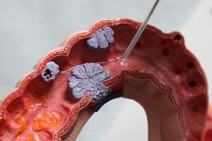 Marzec miesiącem świadomości raka jelita grubego  [Fot. Milton Oswald - Fotolia.com]