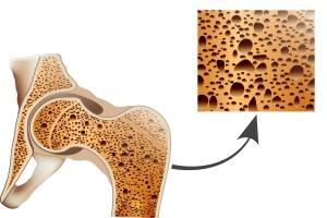 Menopauza a osteoporoza - jak zapobiec chorobie [Fot. reineg - Fotolia.com]