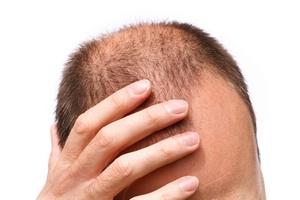 Mężczyźni bardziej boją się łysienia niż impotencji [© Paul Maguire - Fotolia.com]